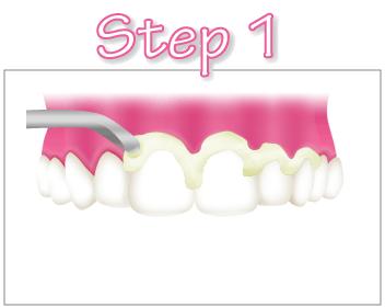 pmtc-step1