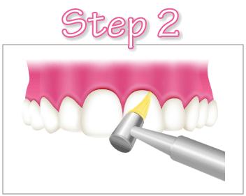 pmtc-step2