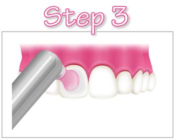 pmtc-step3