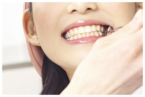 成人一般歯科